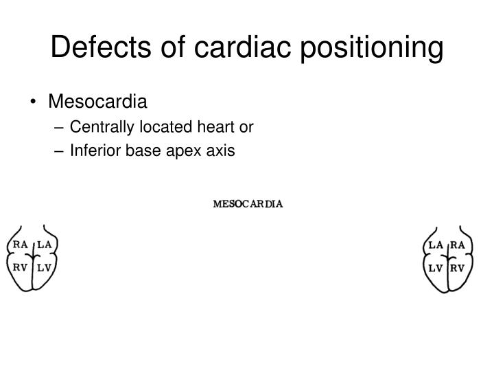Defects of cardiac positioning