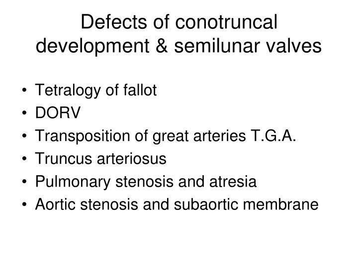 Defects of conotruncal development & semilunar valves