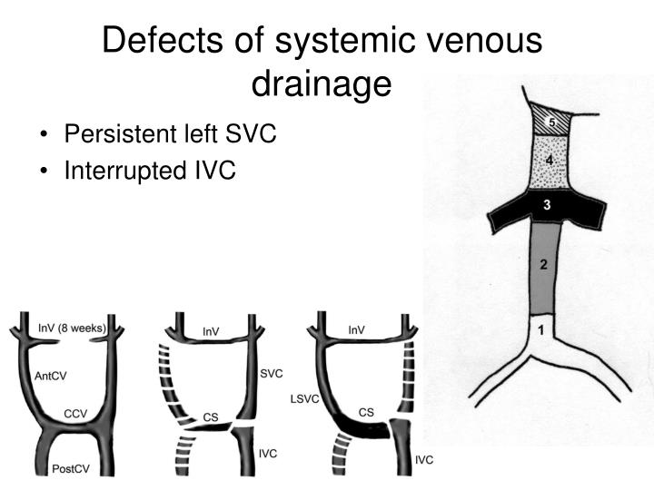 Defects of systemic venous drainage