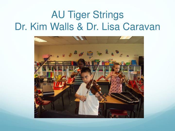 AU Tiger Strings