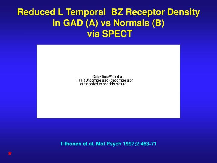 Reduced L Temporal  BZ Receptor Density in GAD (A) vs Normals (B)