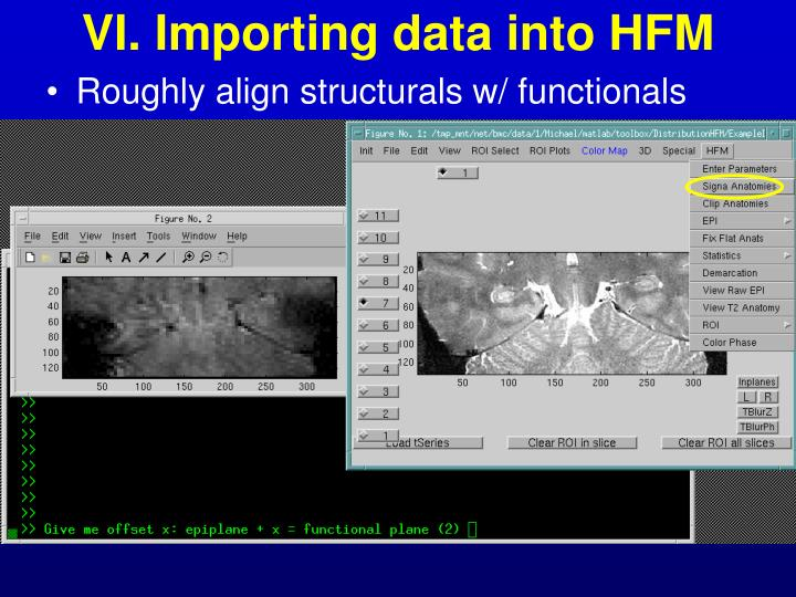 VI. Importing data into HFM