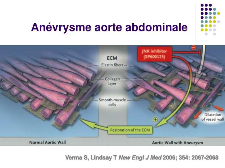 Anévrysme aorte abdominale