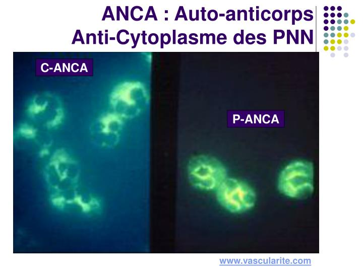 Anca auto anticorps anti cytoplasme des pnn