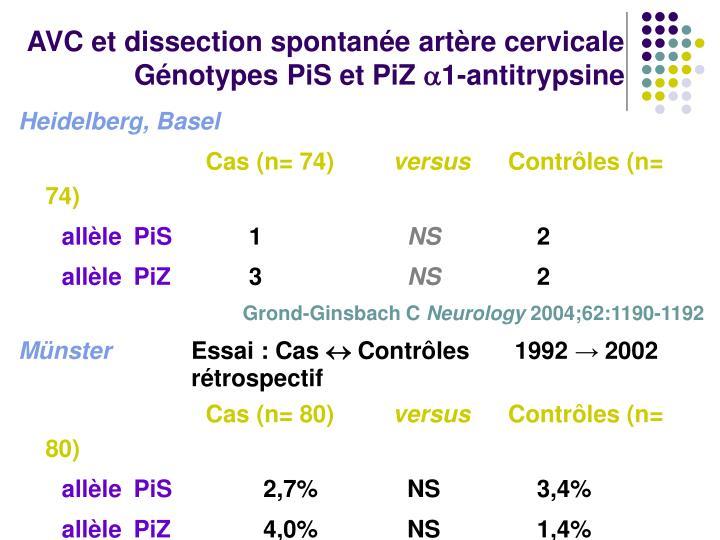 AVC et dissection spontanée artère cervicale