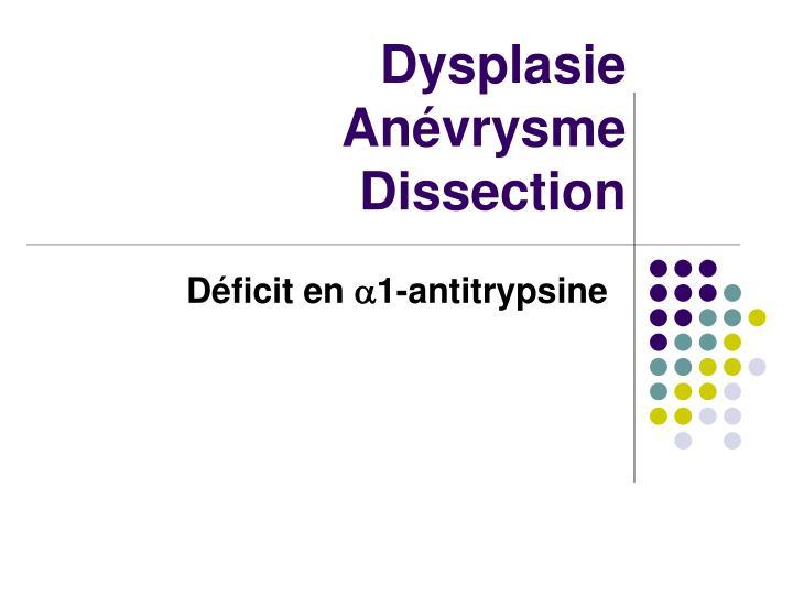 Dysplasie