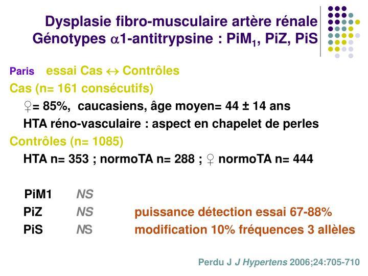 Dysplasie fibro-musculaire artère rénale