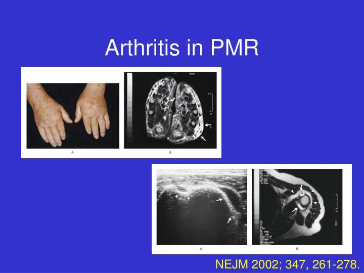 Arthritis in PMR