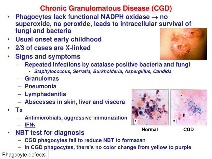 Chronic Granulomatous Disease (CGD)