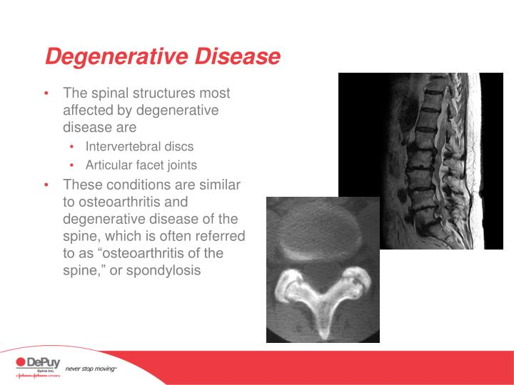 The spinal structures most affected by degenerative