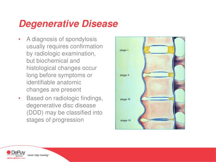 A diagnosis of spondylosis usually requires confirmation by radiologic examination, but biochemical and histological changes occur long before symptoms or identifiable anatomic changes are present