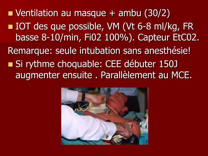 Ventilation au masque + ambu (30/2)