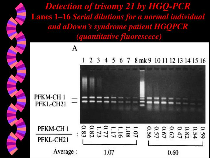 Detection of trisomy 21 by HGQ-PCR