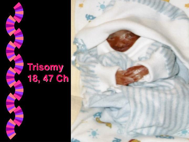 Trisomy 18, 47 Ch