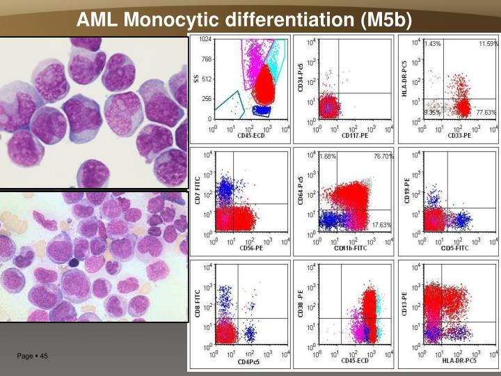 AML Monocytic differentiation (M5b)