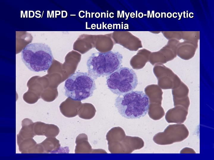 MDS/ MPD – Chronic Myelo-Monocytic Leukemia