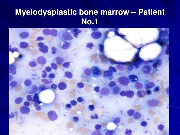 Myelodysplastic bone marrow – Patient No.1