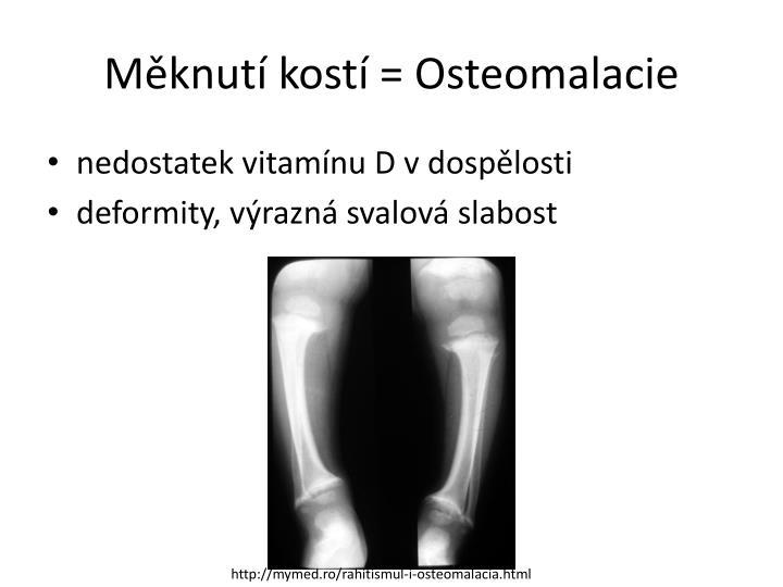 Měknutí kostí = Osteomalacie