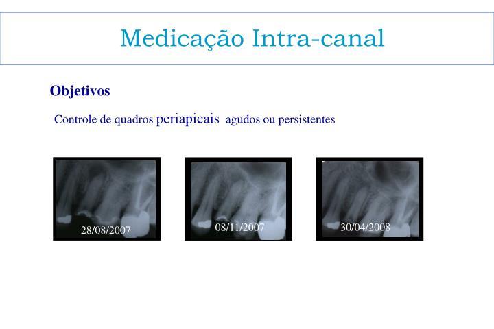 Medicação Intra-canal