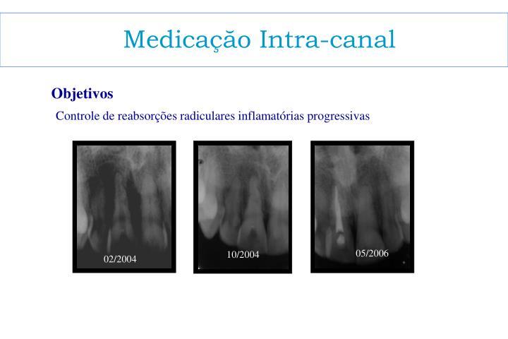 Medicaçăo Intra-canal
