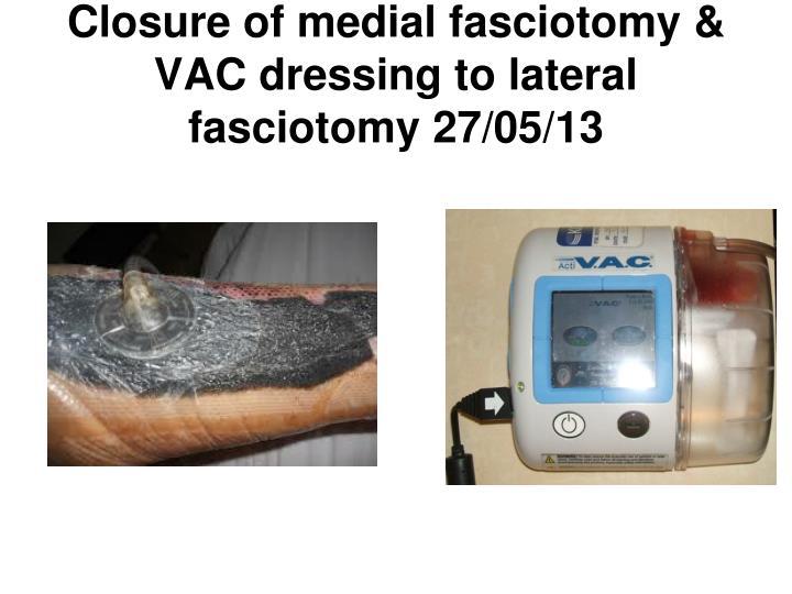 Closure of medial fasciotomy &