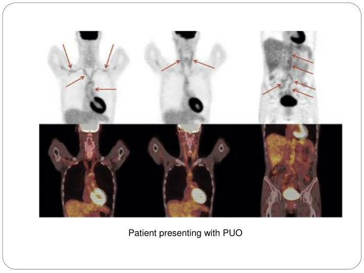 Patient presenting with PUO
