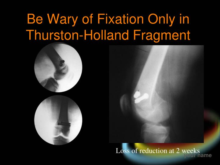 Be Wary of Fixation Only in Thurston-Holland Fragment