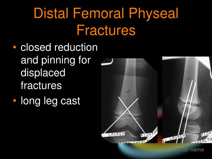 Distal Femoral Physeal Fractures