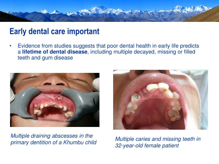 Multiple draining abscesses in the primary dentition of a Khumbu child
