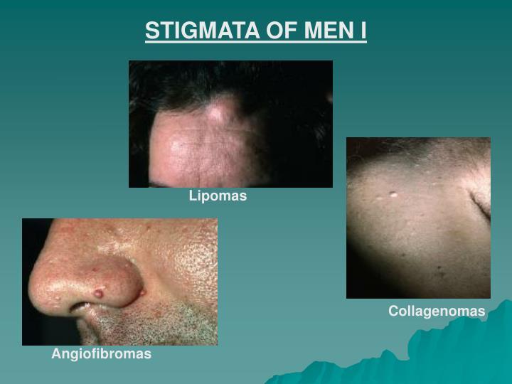 STIGMATA OF MEN I