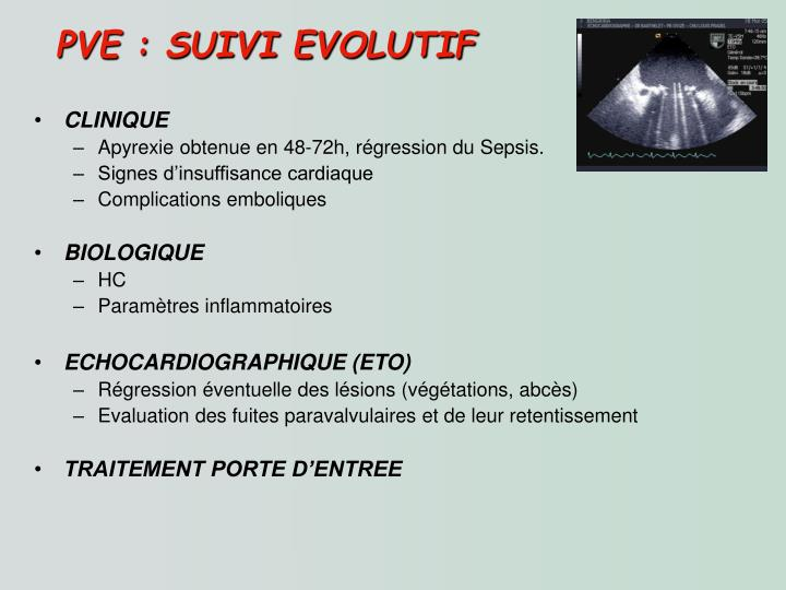 PVE : SUIVI EVOLUTIF