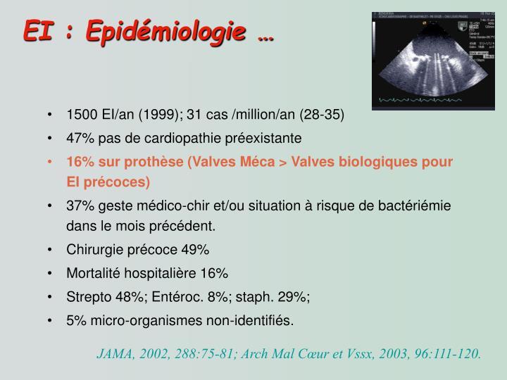 EI : Epidémiologie …