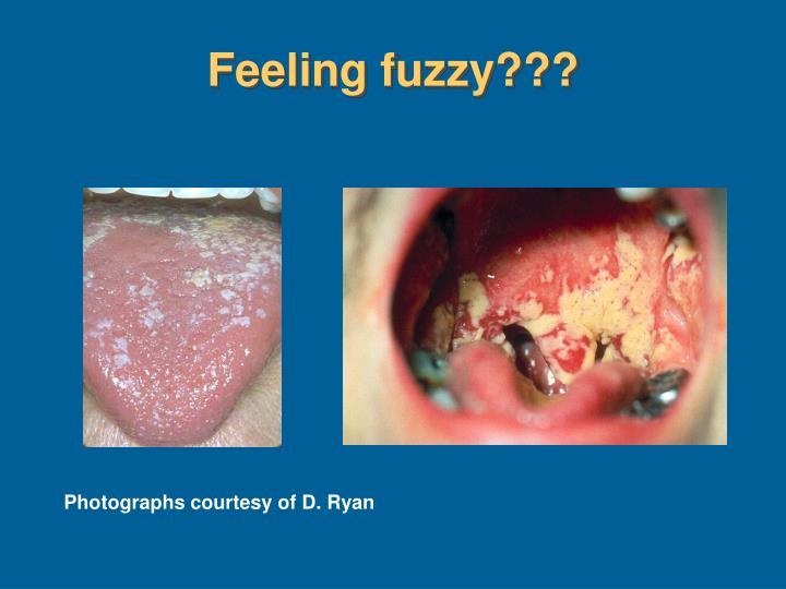 Feeling fuzzy???