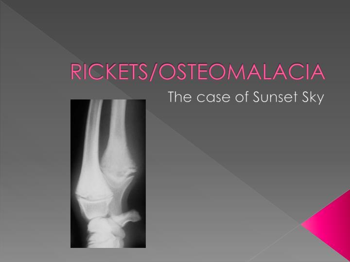 RICKETS/OSTEOMALACIA