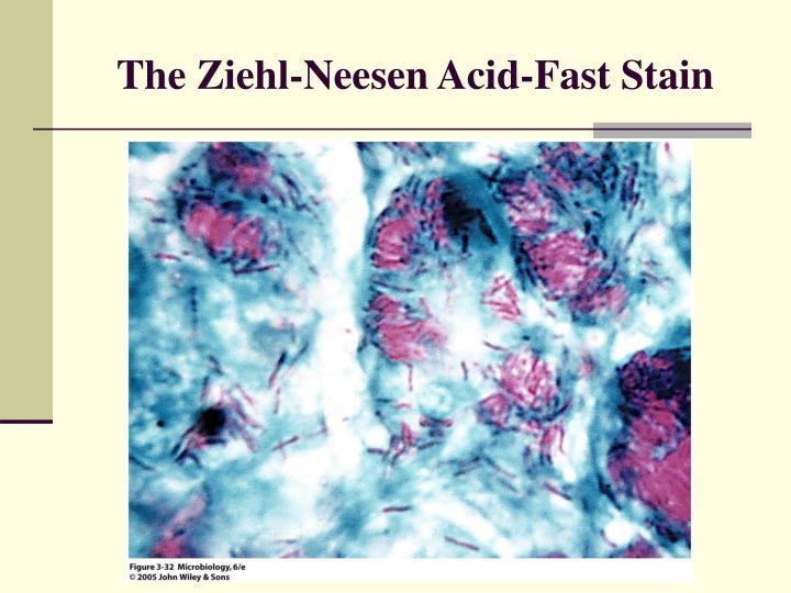 The Ziehl-Neesen Acid-Fast Stain