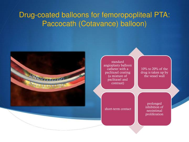 Drug-coated balloons for femoropopliteal PTA: Paccocath (Cotavance) balloon)