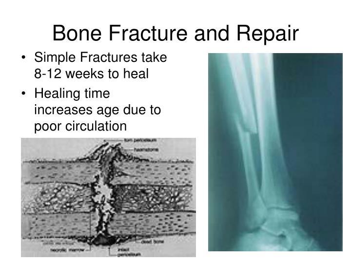 Bone Fracture and Repair