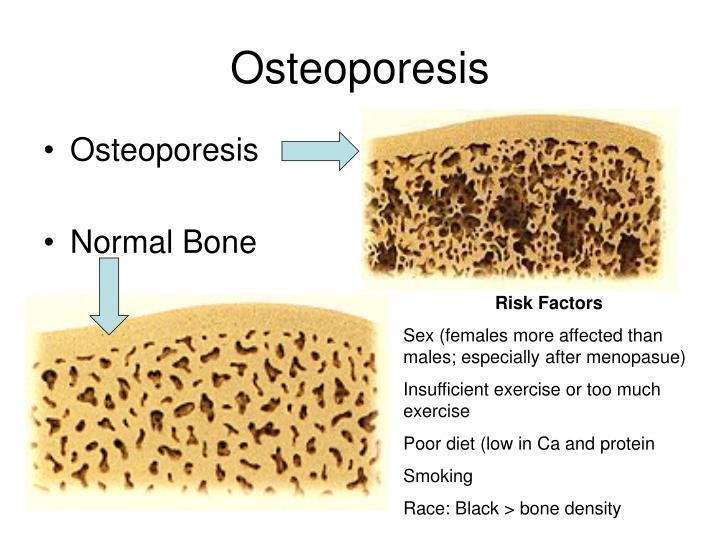Osteoporesis