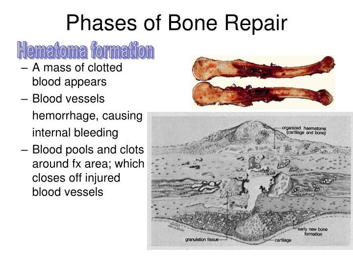 Phases of Bone Repair