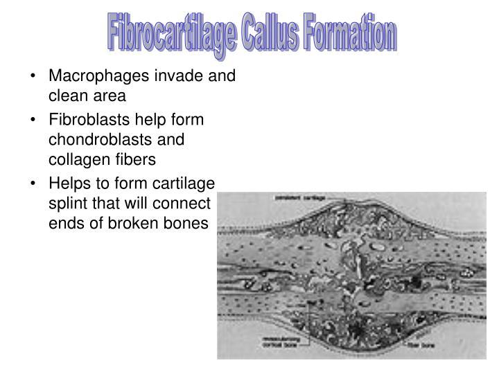 Fibrocartilage Callus Formation