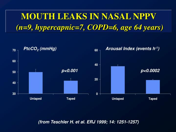MOUTH LEAKS IN NASAL NPPV
