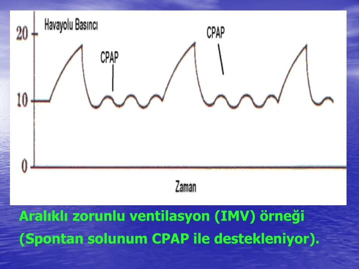 Aralıklı zorunlu ventilasyon (IMV) örneği (Spontan solunum CPAP ile destekleniyor).