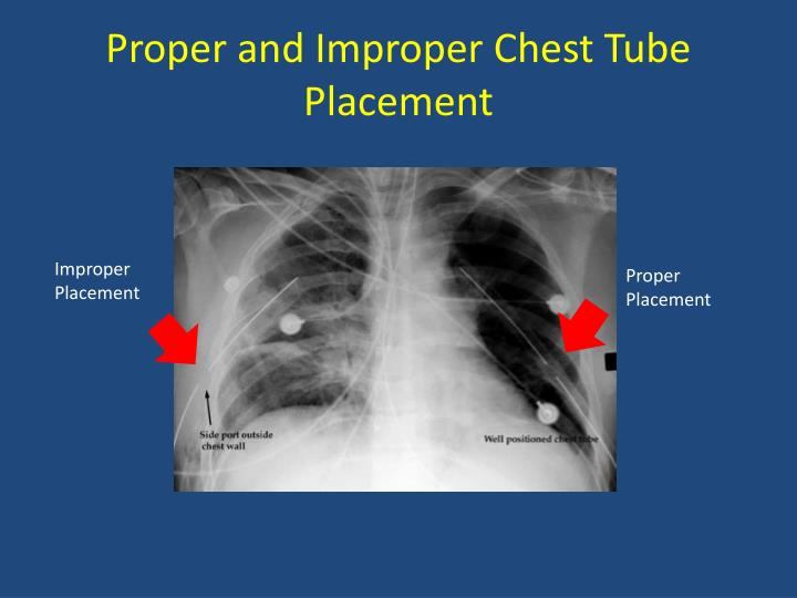 Proper and Improper Chest Tube Placement