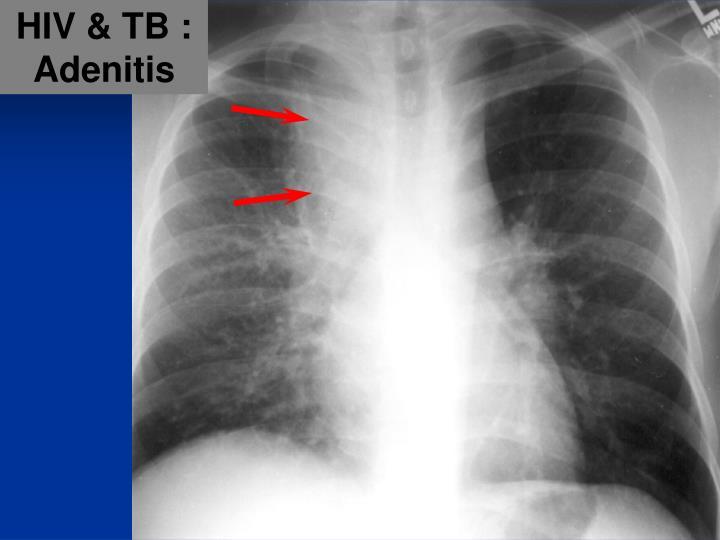 HIV & TB :
