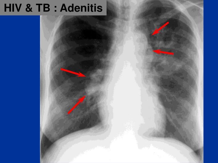HIV & TB : Adenitis