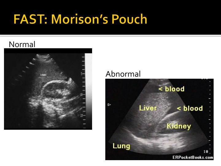 FAST: Morison's Pouch