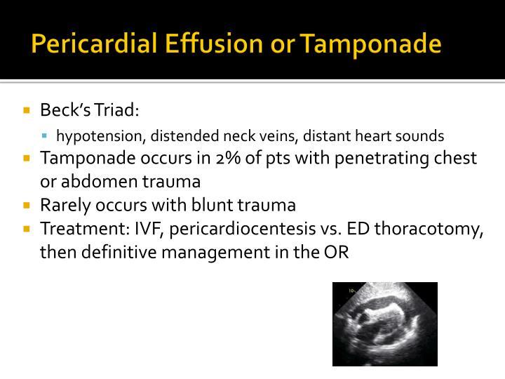 Pericardial Effusion or Tamponade