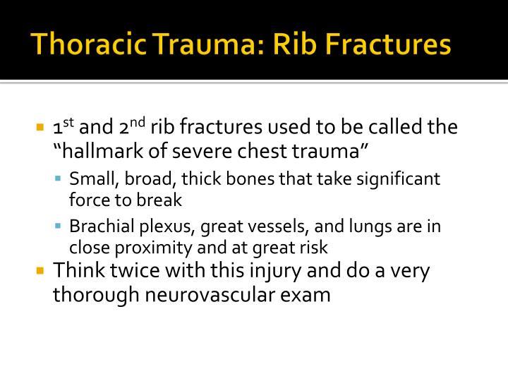 Thoracic Trauma: Rib Fractures