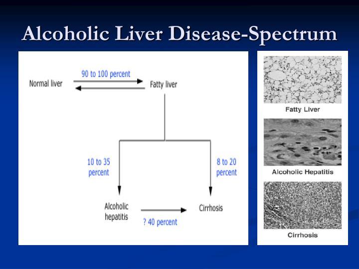 Alcoholic Liver Disease-Spectrum