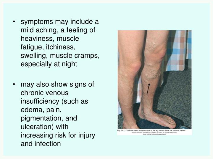 symptoms may include a mild aching, a feeling of heaviness, muscle fatigue, itchiness, swelling, muscle cramps, especially at night